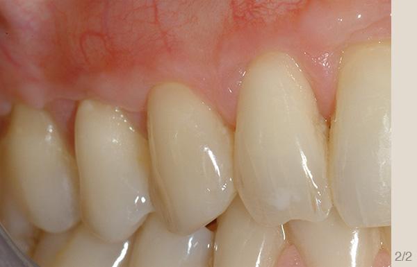 Parodontologia_dopo